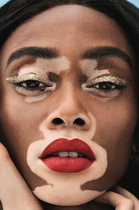 Эффект светотени: как модели с витилиго меняют стандарты красоты