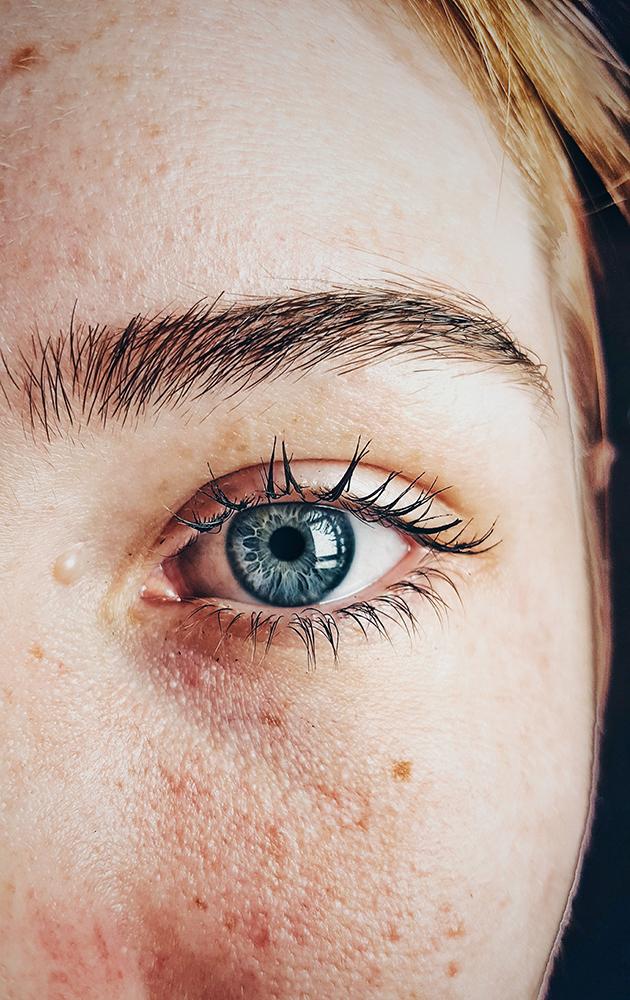Клиника эстетической медицины XELLA: шлифовка лица пикосекундным лазером PicoSure