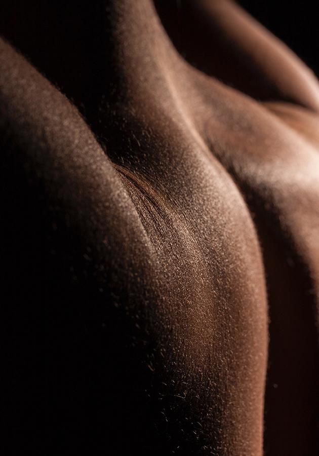 #BeautyExperts. Удаление келоидных рубцов: мнение специалиста и личный опыт