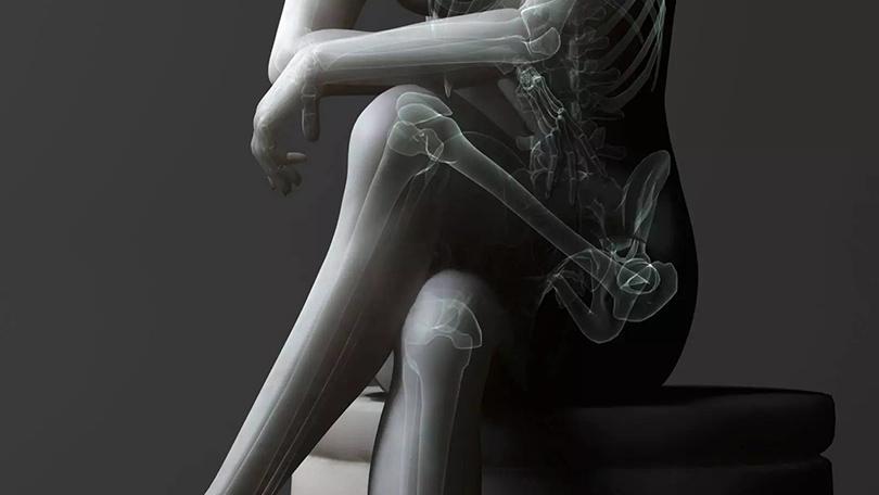 Healthy Lifestyle: нога на ногу — удобно, но вредно