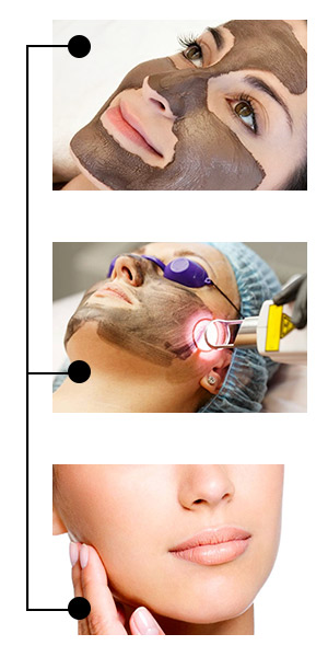 Какие процедуры попробовать в салоне красоты Celebrity. Лазерная чистка лица карбоновым пилингом